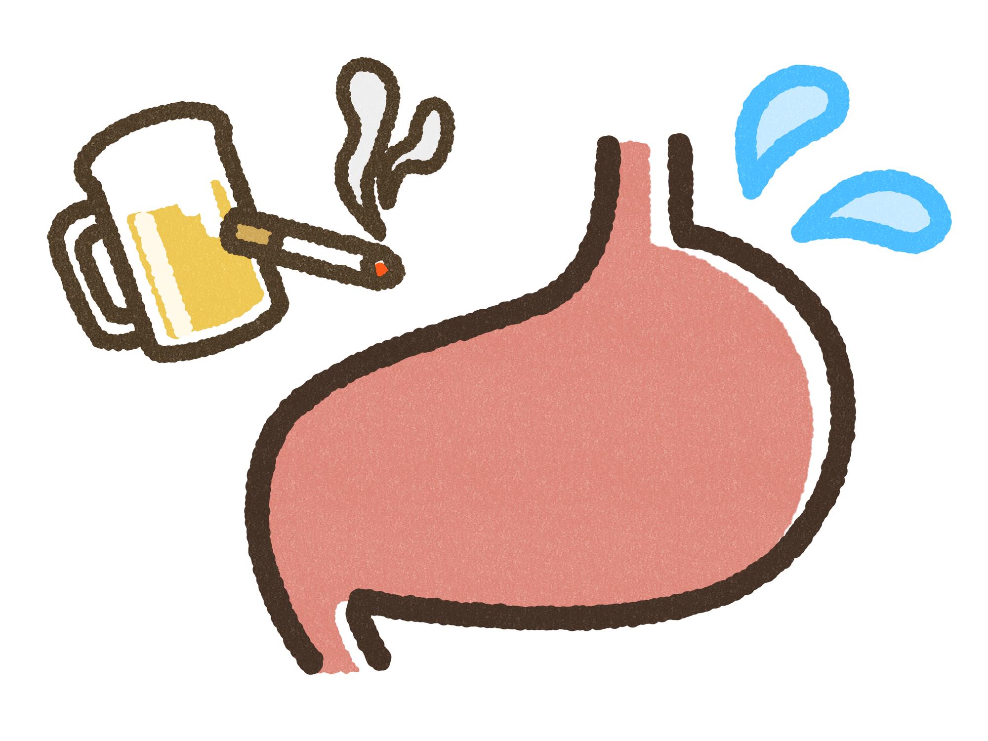 胃がんとは?その症状や治療法などについてご紹介