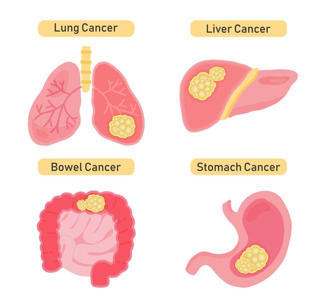 がんは2種類に分けられる それぞれの特徴や治療法について