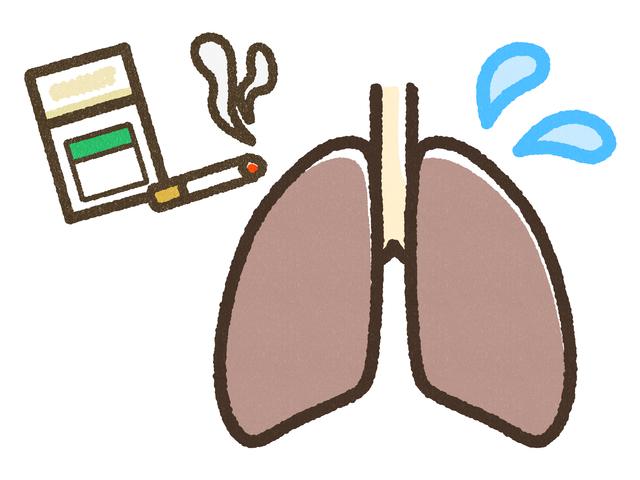 肺がんとは?その原因と治療法について